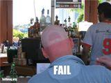 Sonnenbrand Abdruck auf dem Kopf
